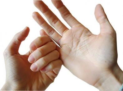 scaley-hands