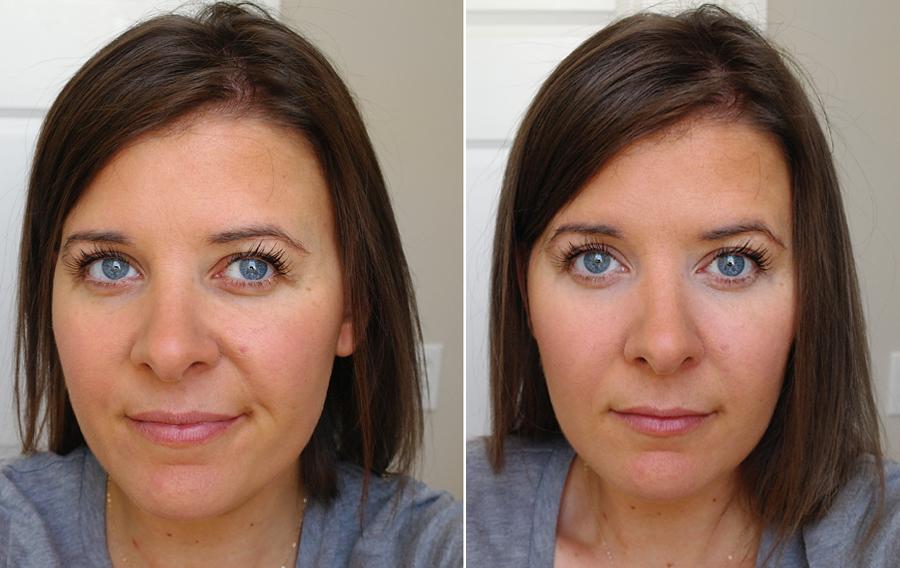 before-after-concealer